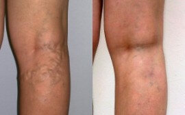 Before and after the use Varicobooster 1
